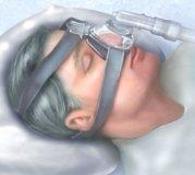 Apneea de somn centrala