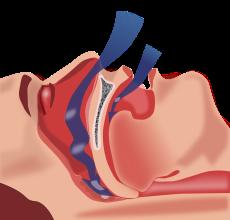 apnee obstructiva