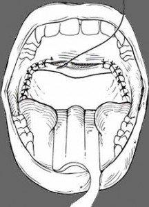 uvuloplastia